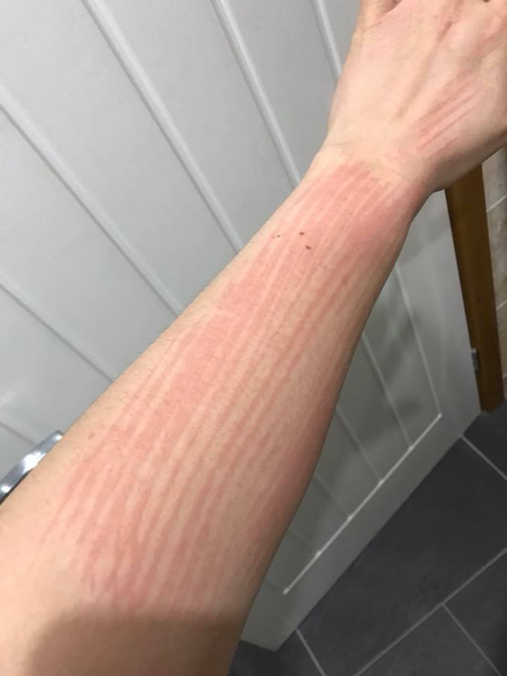 Picture of Dermatographia on the Arm