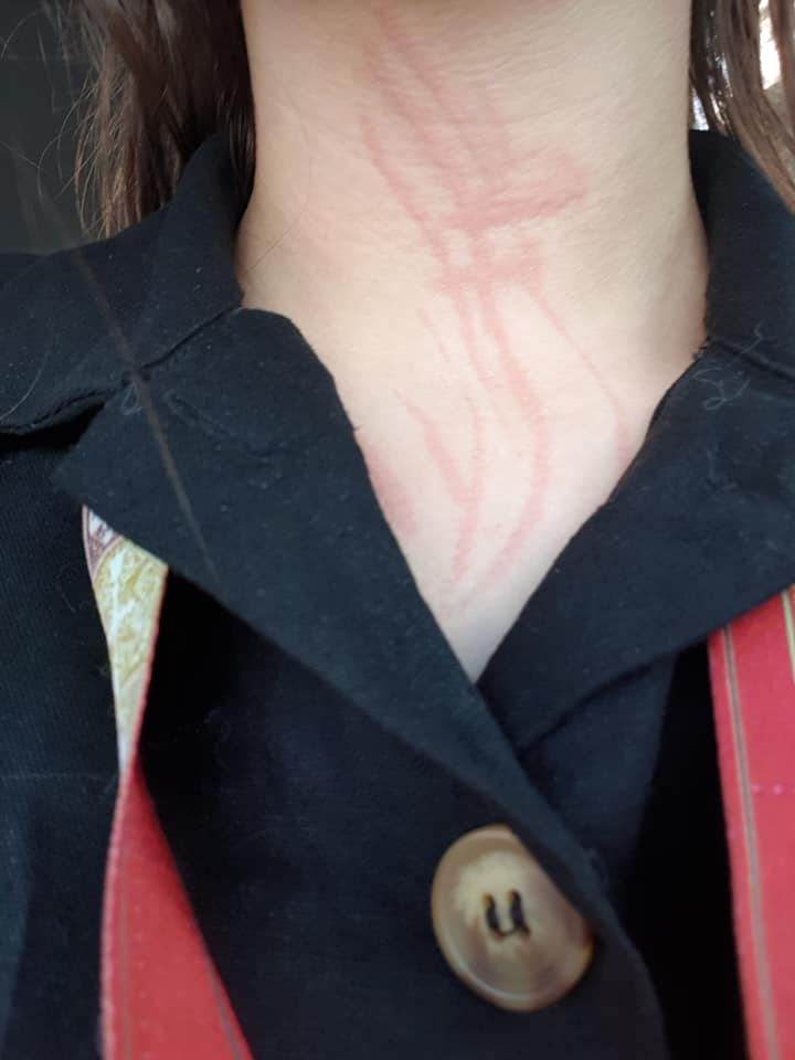 Pictures of Dermatographia on the Neck