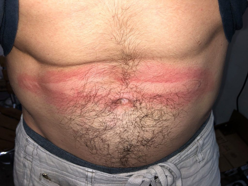 Dermatographia Example image on the stomach