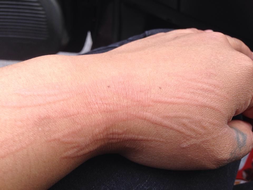 Natural Dermatographia Treatment Stop Itching Hives And